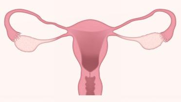 uterus-3777765_1920