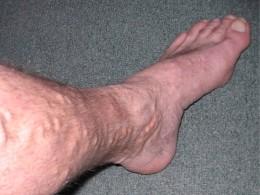 Leg_Before_1
